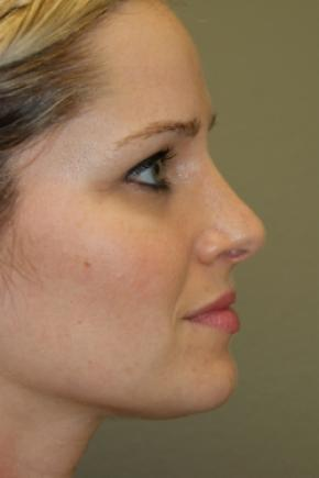 After Photo - Nose Surgery - Case #2999 - Rhinoplasty - Lateral View