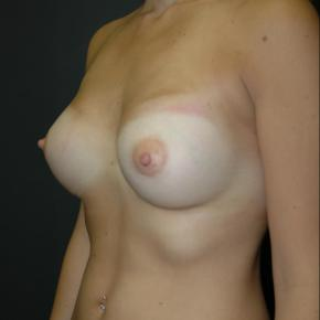 After Photo - Breast Augmentation - Case #3001 - Oblique View