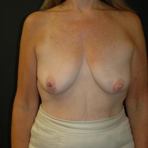 Before Photo - Breast Lift - Case #3002 - Mastopexy with Breast Augmentation - Frontal View