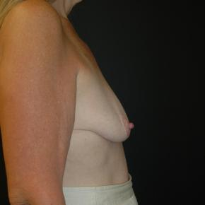 Before Photo - Breast Lift - Case #3002 - Mastopexy with Breast Augmentation - Lateral View