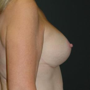 After Photo - Breast Lift - Case #3002 - Mastopexy with Breast Augmentation - Lateral View