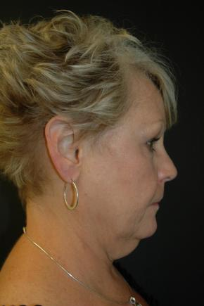 Before Photo - Facial Rejuvenation - Case #3003 - Facelift, Fat Transfer, Lower Blepharoplasty - Lateral View