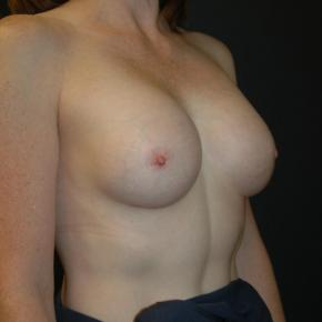 After Photo - Breast Augmentation - Case #3004 - Oblique View
