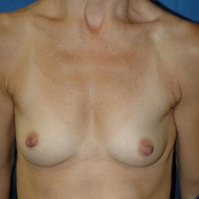 Before Photo - Breast Augmentation - Case #3005 - Frontal View