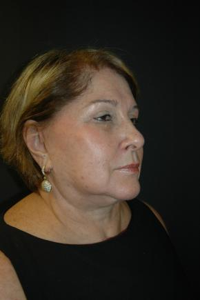 After Photo - Facial Rejuvenation - Case #3006 - Facelift, Lateral Browlift, Fat Transfer - Oblique View