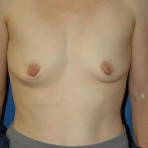 Before Photo - Breast Augmentation - Case #3008 - Frontal View