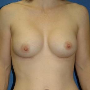 After Photo - Breast Augmentation - Case #3008 - Frontal View