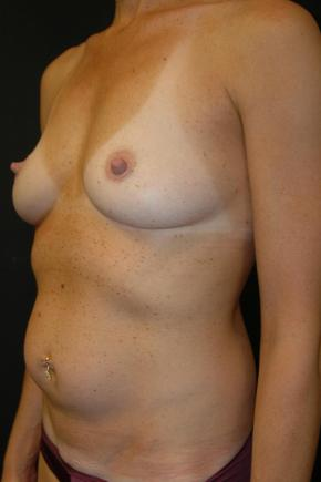 "Before Photo - Mommy Makeover - Case #3016 - ""Mommy Make-Over"" Breast Augmentation and Abdominoplasty - Oblique View"