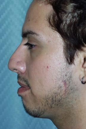 Before Photo - Nose Surgery - Case #3019 - Rhinoplasty - Lateral View