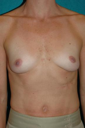 Before Photo - Breast Augmentation - Case #3021 - Frontal View