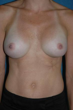 After Photo - Breast Augmentation - Case #3021 - Frontal View