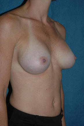 After Photo - Breast Augmentation - Case #3021 - Oblique View