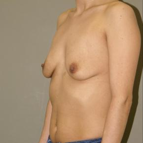 Before Photo - Breast Augmentation - Case #3028 - Oblique View