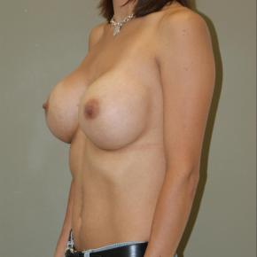 After Photo - Breast Augmentation - Case #3028 - Oblique View