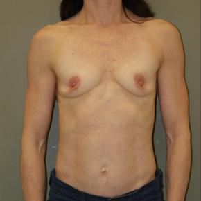 Before Photo - Breast Augmentation - Case #3029 - Frontal View
