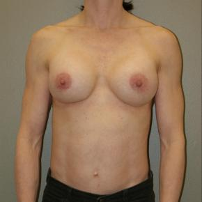 After Photo - Breast Augmentation - Case #3029 - Frontal View