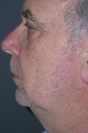 Before Photo - Facelift - Case #3030 - Facelift, Blepharoplasty, Browlift  - Lateral View