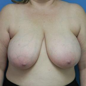 Before Photo - Breast Reduction - Case #3379 - Bilateral breast reduction  - Frontal View
