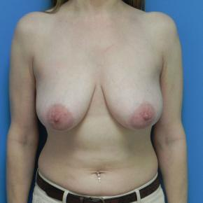 Before Photo - Breast Lift - Case #3383 - Mastopexy  (Breast Lift) - Frontal View