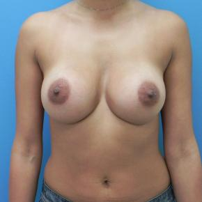 After Photo - Breast Augmentation - Case #3385 - Frontal View