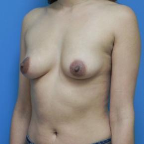 Before Photo - Breast Augmentation - Case #3385 - Oblique View