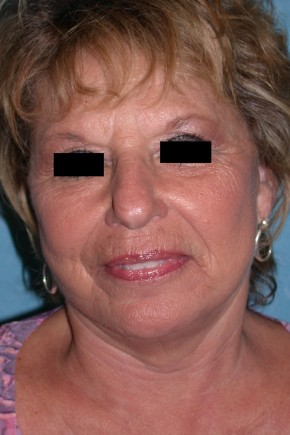 After Photo - Neck Lift - Case #3520 - Lower Face and Neck Lift  - Frontal View