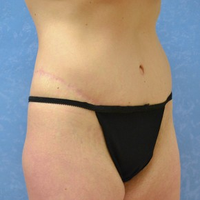 After Photo - Plastic Surgery After Dramatic Weight Loss - Case #3525 - Circumferential body lift with medial thighplasty - Frontal View