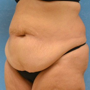 Plastic Surgery After Dramatic Weight Loss