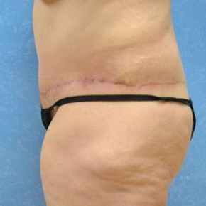 After Photo - Plastic Surgery After Dramatic Weight Loss - Case #3527 - Circumferential body lift with VASER to circumferential thighs - Frontal View