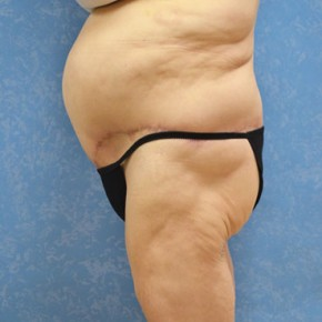 After Photo - Plastic Surgery After Dramatic Weight Loss - Case #3529 - Circumferential body lift with abdominal wall plication - Frontal View