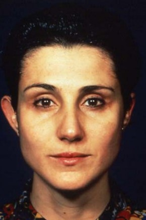 After Photo - Eyelid Surgery - Case #3555 - Blepharoplasty - Frontal View