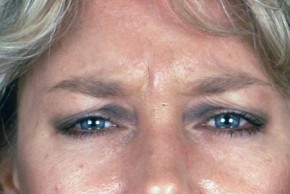 Before Photo - Botulinum Toxin - Case #3559 - Frontal View