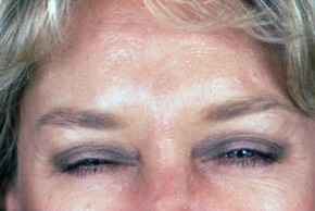 After Photo - Botulinum Toxin - Case #3559 - Frontal View