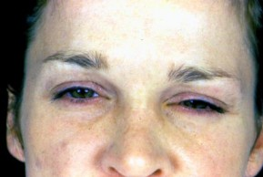 After Photo - Botulinum Toxin - Case #3560 - Frontal View