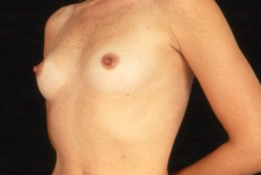 Before Photo - Breast Augmentation - Case #3562 - Frontal View
