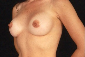 After Photo - Breast Augmentation - Case #3562 - Frontal View