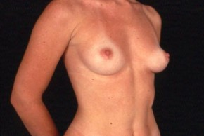 Before Photo - Breast Augmentation - Case #3564 - Frontal View