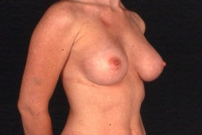 After Photo - Breast Augmentation - Case #3564 - Frontal View
