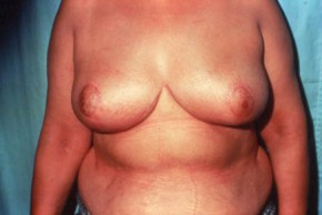 After Photo - Breast Reduction - Case #3565 - Breast Reduction/Lift - Frontal View