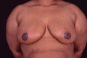 After Photo - Breast Reduction - Case #3569 - Breast Reduction/Lift - Frontal View