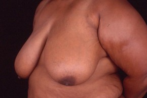 Before Photo - Breast Reduction - Case #3569 - Breast Reduction/Lift - Oblique View