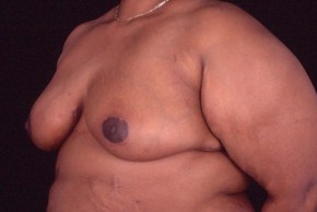 After Photo - Breast Reduction - Case #3569 - Breast Reduction/Lift - Oblique View