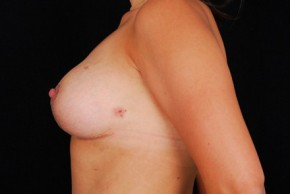After Photo - Breast Augmentation - Case #3570 - Breast Augmentation/Lift - Lateral View