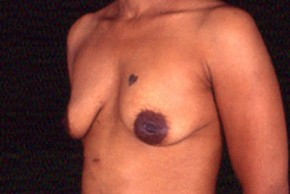 Before Photo - Breast Augmentation - Case #3625 - Breast Augmentation/Lift - Oblique View