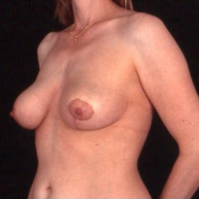 After Photo - Breast Lift - Case #3626 - Oblique View