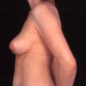 After Photo - Breast Lift - Case #3626 - Lateral View