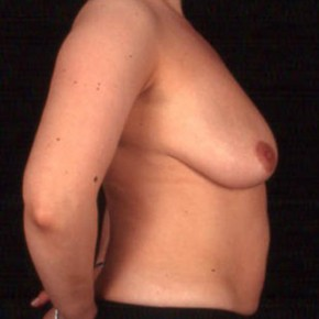 Before Photo - Breast Lift - Case #3627 - Breast Augmentation - Lateral View