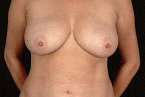 After Photo - Breast Reduction - Case #3628 - Frontal View