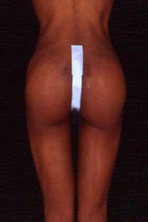 After Photo - Buttock Augmentation - Case #3640 - Frontal View