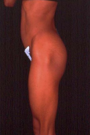 Before Photo - Buttock Augmentation - Case #3640 - Lateral View